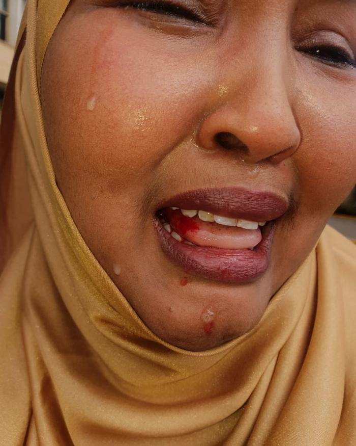 Image of Fatuma Gedi, member of Kenyan parliament beaten by her colleague