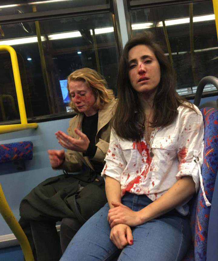 Image of lesbian couple brutalised in homophobic attack in London bus.